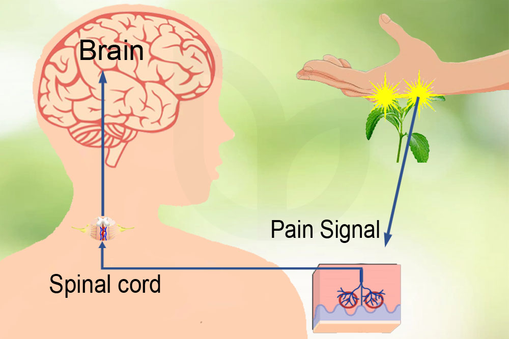 Illustration when stung by Dendrocnide stimulants